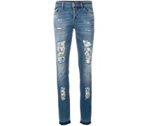 'Fix You' Jeans