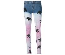 'Aloha Plein' Skinny-Jeans