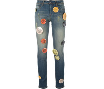 Jeans mit großen Buttons