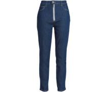 Zip-detailed High-rise Skinny Jeans Dark Denim  3