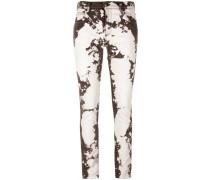 Skinny-Jeans mit Bleached-Effekt