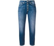 - Cropped-Skinny-Jeans mit Knopfleiste - women
