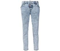 Skinny-Jeans mit Acid-Wash-Optik