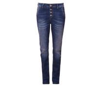 Boyfriend: Jeans mit Knopfleiste blau